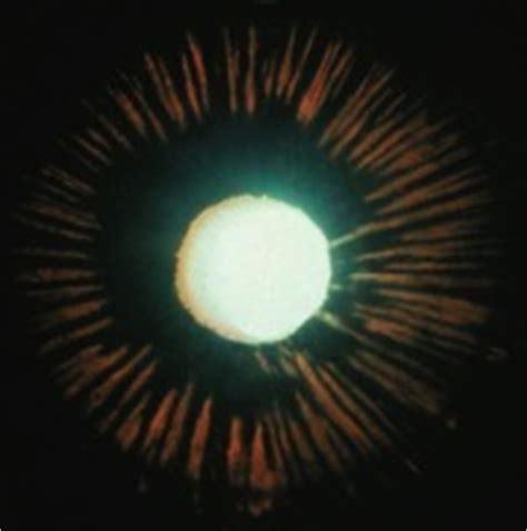 dolore all angolo interno dell occhio glaucoma studiodazeglio it