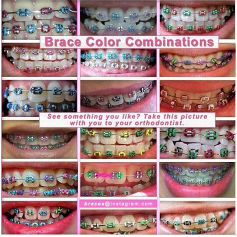retainer colors color combinations braceface braces teeth braces
