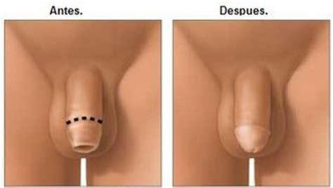 fotos de penes no paradas consejos de fotografa la salud femenina qu 233 es la circuncisi 243 n como se