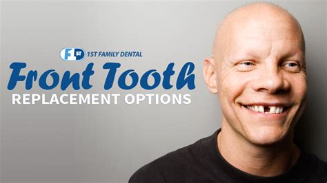 front tooth replacement options st family dental