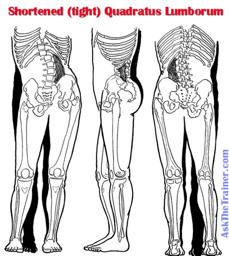 quadratus lumborum management for ql strain recovery strengthening and management books hip and leg endometriosis hip and leg in 6 year