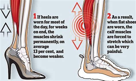 Nena High Heels N Co T 7cm bahaya mengintai flat shoes dan high heels