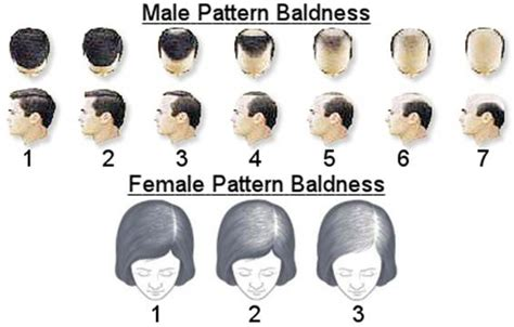 hairline pattern the cause of hair loss