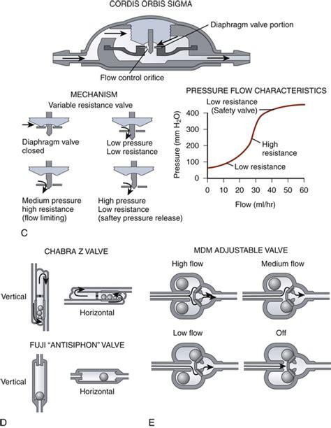 camini shunt figure 54 3 shunt valve designs a standard differential