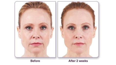 juvederm non surgical wrinkle treatment new york city