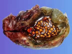gallbladder stones these are gallstones in the gallbladder flickr