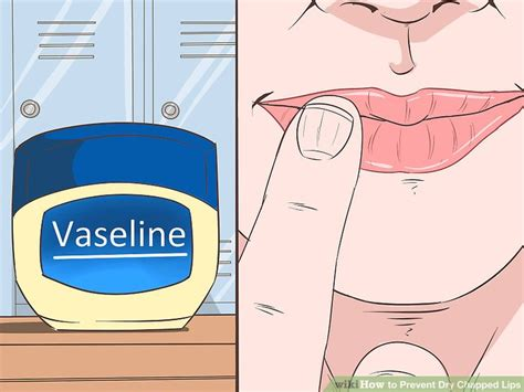 4 Reasons You Chapped And 4 Ways To Stop It by 3 Ways To Prevent Chapped Wikihow