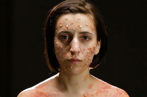 W Deadly Disorders what deadly diseases look like on your