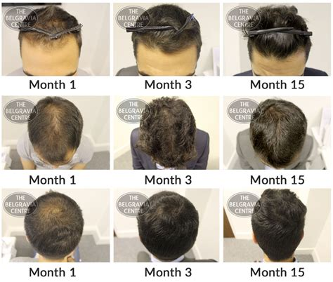 pictures of hair growth month by month after chemotherapy by people belgravia hair loss blog