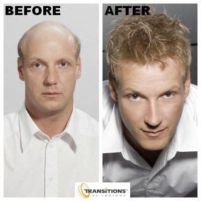 hairline restoration for men 1000 images about men s hair replacement on pinterest