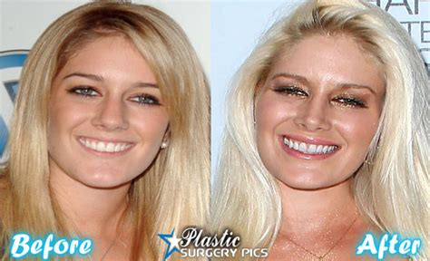Heidi Montag Plastic Surgery by Heidi Montag Plastic Surgery Before And After Pics