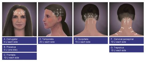 botox injection for migraines diagram botox injection for migraines diagram 28 images side