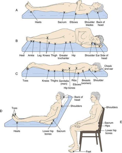 pressure ulcer points diagram spine pressure points diagram pressure points