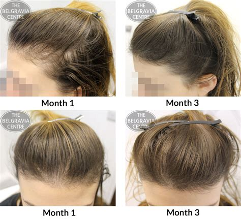how to fix a womans thinning hair on top belgravia hair loss blog