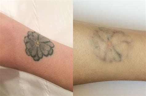 does laser tattoo removal really work laser removal what it s really like to a