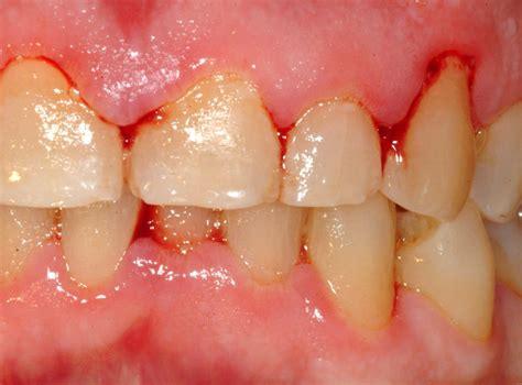 Biaya Pemutihan Gigi Mati penyebab gusi berdarah tak sembuh sembuh klinik gigi dental yogyakarta