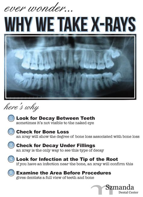 you wondered why we take x rays no more smartmouth dentistry dental