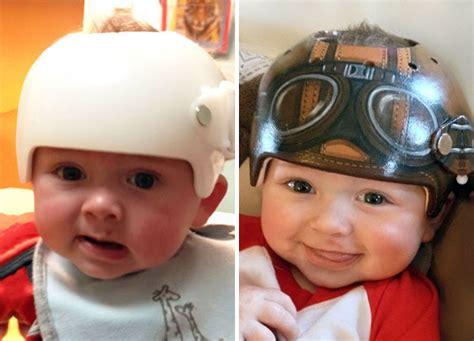 helmet design for babies artist transforms babies head shaping helmets into