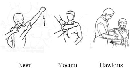 yocum test hawkins kennedy test for shoulder related keywords