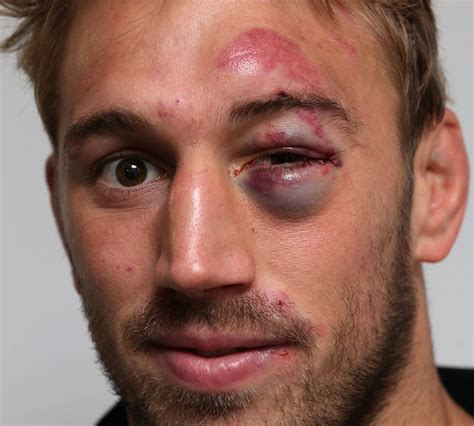 Black Yes now that s a black eye chris robshaw rugby union