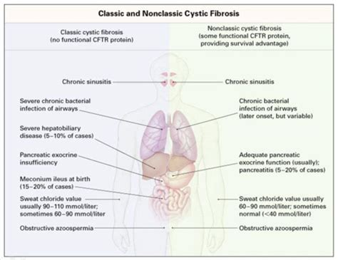 comparing themes quizlet cystic fibrosis case study quizlet eyeofthedaygdc web
