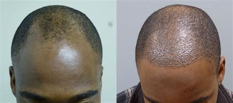 in south africa hair transplant neograft hair transplant procedure spa medica