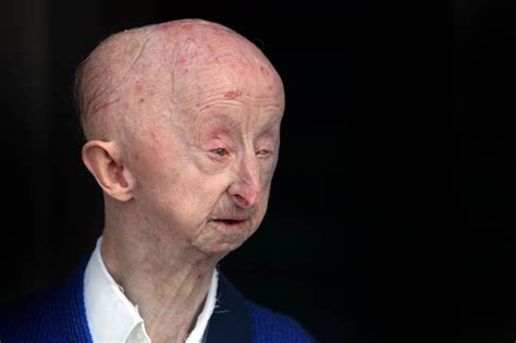disabled gateshead man alan barnes attacked by cowardly