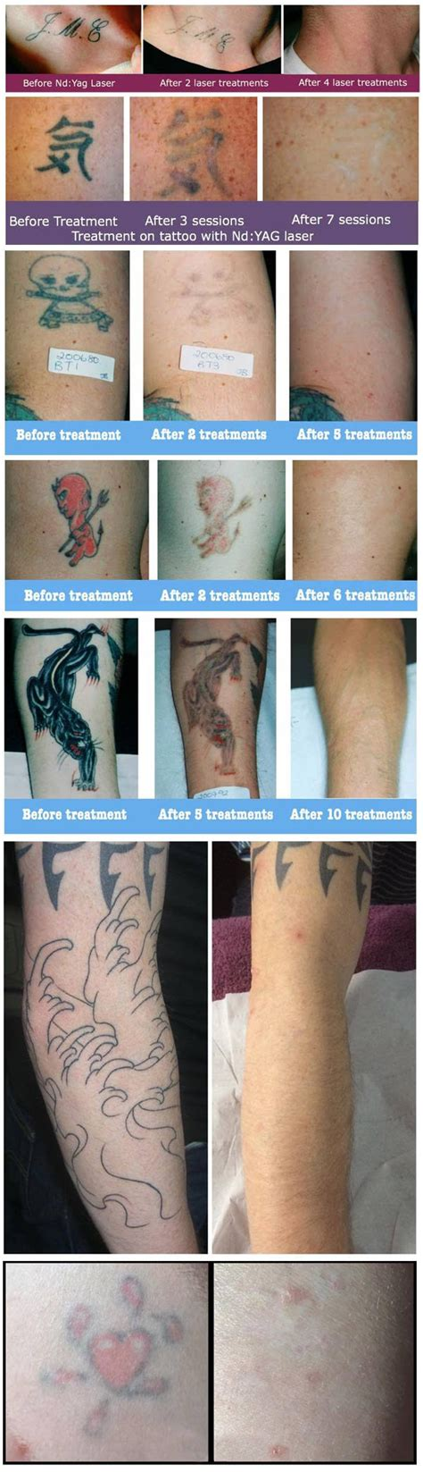 bleeding after laser tattoo removal laser removal outline clinic droitwich