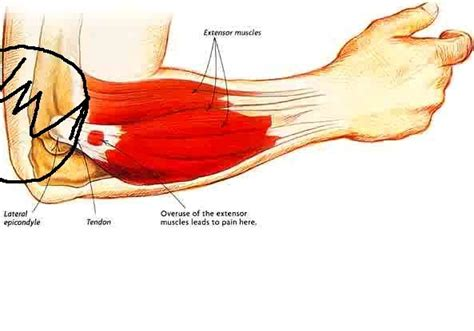 elbow tendonitis bench press tennis elbow tendonitis help diagnosing injuries and