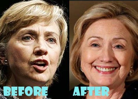 hillary clinton facelift 2014 hillary clinton plastic surgery before and after pictures