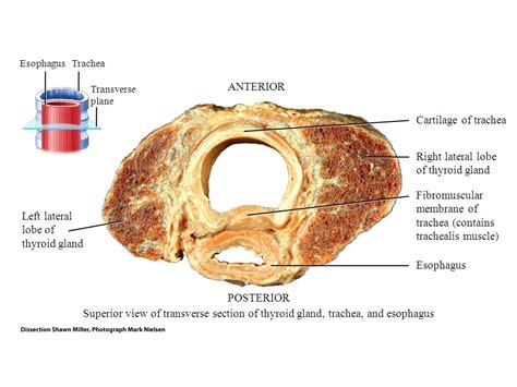 trachea transverse section principles of anatomy and physiology ppt video online