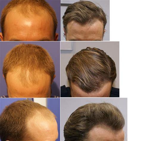 Fue Haircuts | fue haircuts fue hair transplant repair5000 grafts bht