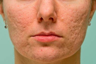 i got rid of all my deep rolling acne scars with msm cream how to get rid of 5 common types of acne scars reader s