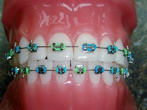 braces color combinations 25 best ideas about braces colors on nail