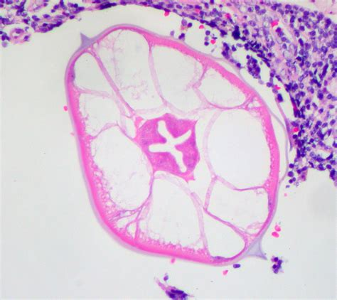 Stool In Appendix by Differential Diagnosis Of Chronic Diarrheal In