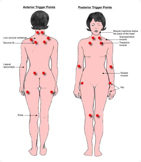 18 tender points of fibromyalgia diagram fibromyalgia trigger tender points