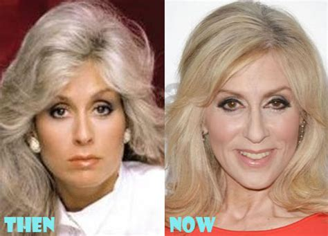 judith light weight loss judith light plastic surgery before after photos lovely