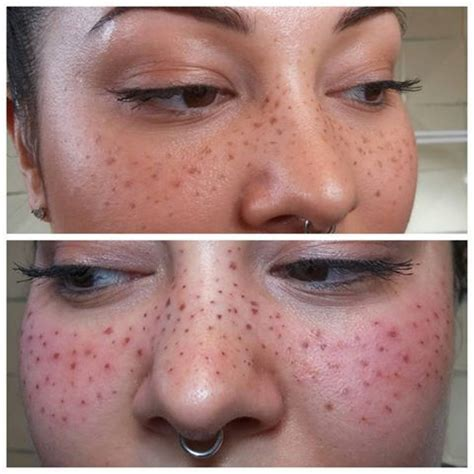 tattoo freckles uk microblading freckles before and after s 246 k p 229 google