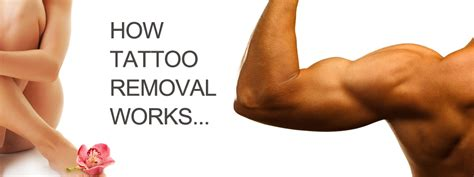 tattoo removal that works lasercare advanced removal center laser