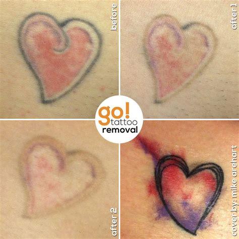 small tattoo cost uk small tattoo removal danielhuscroft com