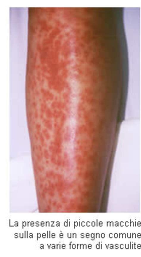 rottura vasi capillari vasculite