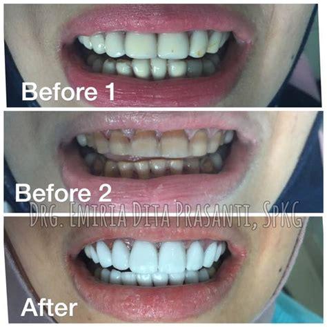 Veneer Pemutih Gigi cantik dengan veneer gigi jakarta
