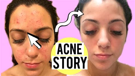 Find Purify My Pores by My Acne Story Clogged Pores To Clear Skin How I Cleared