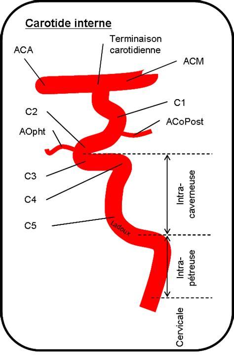 aneurisma carotide interna vasculaire