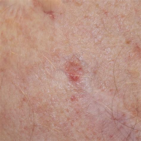 skin cancer images types  skin cancer skincancernet