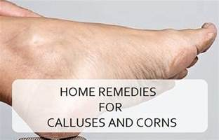 home remedies for corns on toes home remedies for calluses and corns on