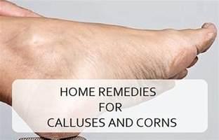 home remedies for corns corns and calluses uric acid foot gel heel