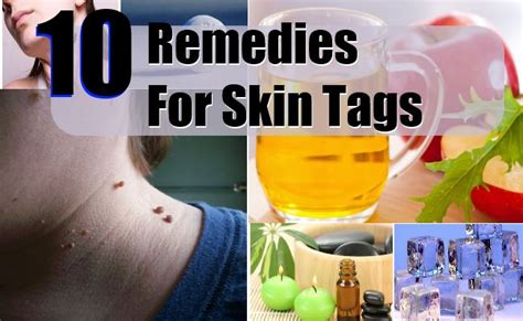 10 home remedies for skin tags treatments cure