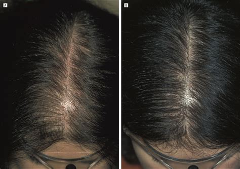 christmas tree pattern baldness finasteride treatment of female pattern hair loss jama