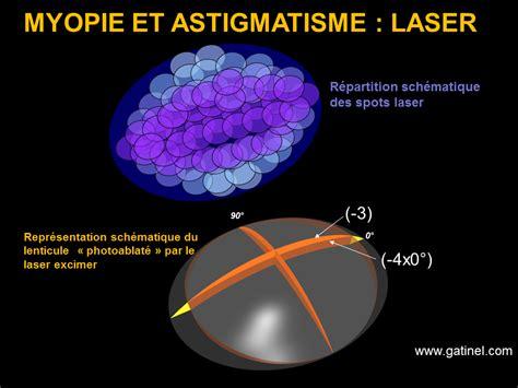 correction myopie lentille myopie et astigmatisme 188   astigmatisme et myopie correction lase exciimerr